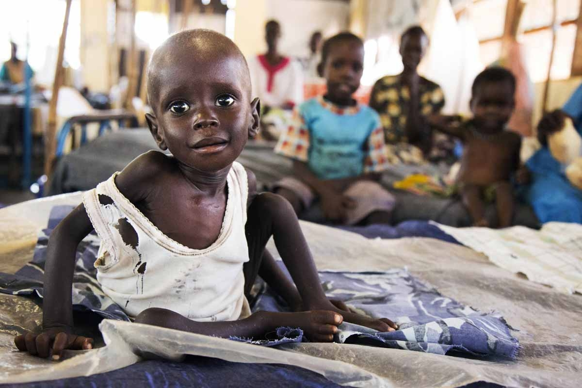 Aleo Tong (1), who suffers severe malnutrition, rests on a bed at the MSF Nutrition centre in Aweil Hospital, on 2 August, 2016.