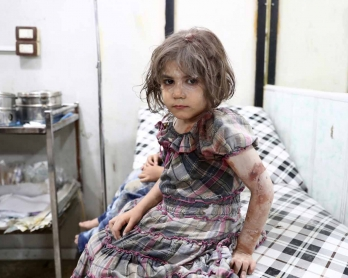 An injured Syrian child poses as she awaits treatment at a makeshift hospital following a reported air stike on the rebel-held town of Douma, east of the capital Damascus, on August 23, 2016.